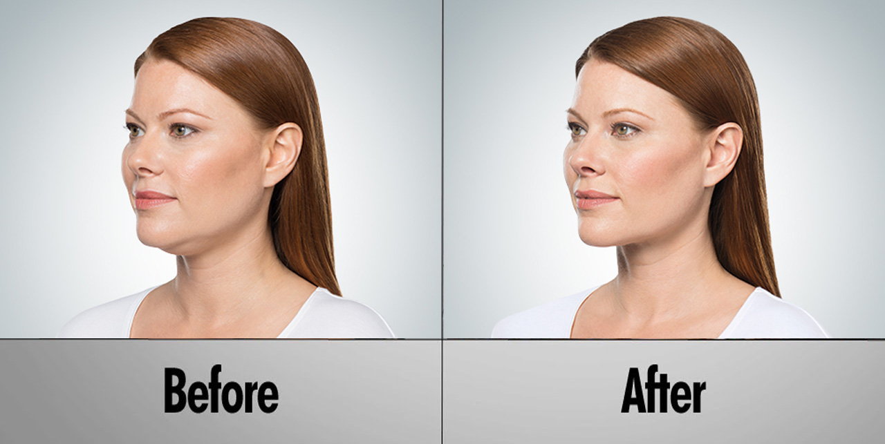 https://s3.amazonaws.com/renuehealth/female_before_after_kybella.jpg