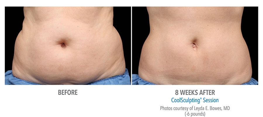 coolsculpting_female_before_and_after