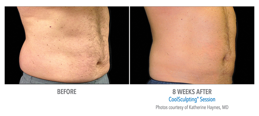 coolsculpting_male_before_and_after