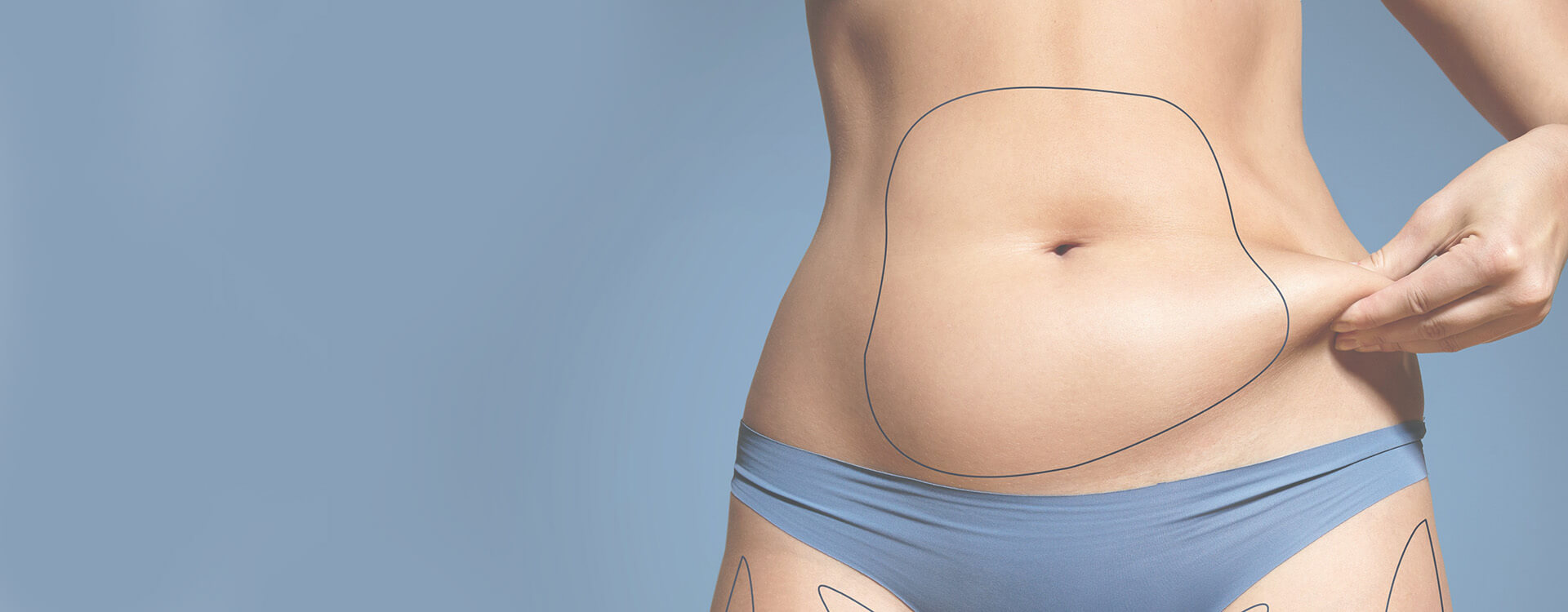 Dermatology CoolSculpting
