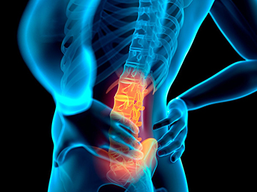 spine and back pain prp exosomes stem-cells